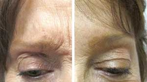 Botox Before/After Gallery