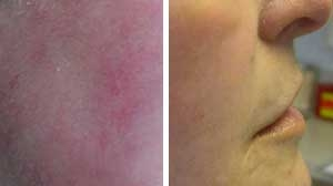 Laser Photofacial Before/After Gallery