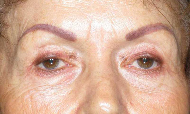 After-Eyelid Surgery - Blepharoplasty