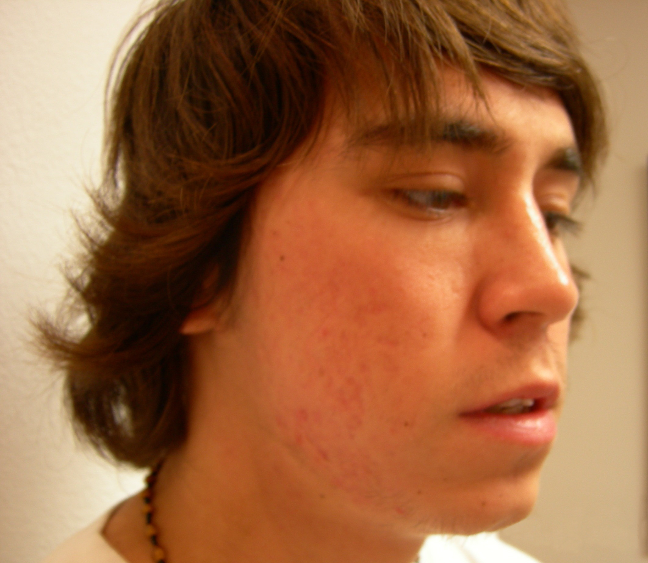 After-Acne Scars and Scar Treatment