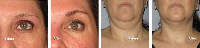 Ultherapy Brow and Neck Treatment