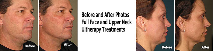 Ultherapy Full Neck Treatment