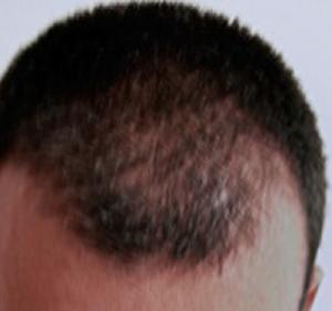 Hair Restoration Before