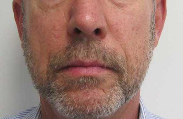 After-Facial Filler for Lipoatrophy