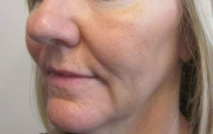 Fractional CO2 After