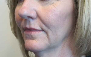 Fractional CO2 Before
