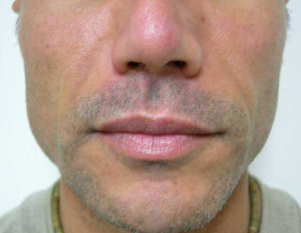 After-Facial Filler for Lipoatrophy