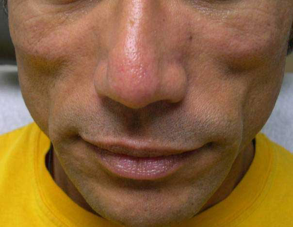 Before-Facial Filler for Lipoatrophy