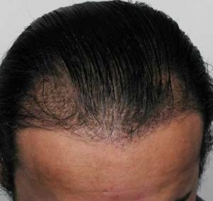 Before Advanced Hair Restoration