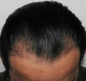 3 Months After Advanced Hair Restoration