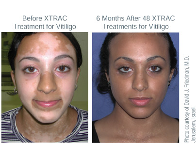 XTRAC Laser Psoriasis Treatment