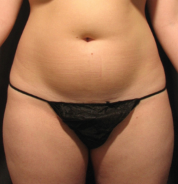Before-VelaShape III Before And After