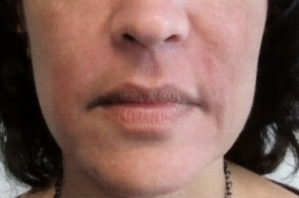 After-Facial Filler