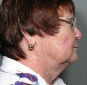 Chin Liposuction before