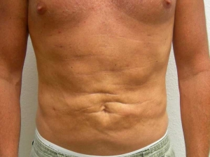 VelaShape III and Liposuction After