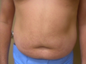 VelaShape III and Liposuction Before
