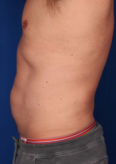 After-CoolSculpting
