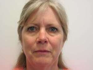 Excel V Laser and Chemical Peel Treatment After