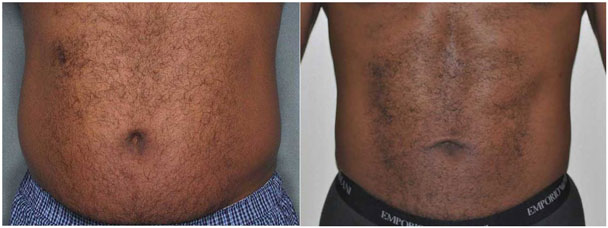 Dr. Jochen can sculpt your body with liposuction