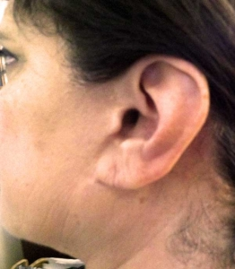 Earlobe Repair After