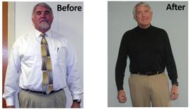 Mike, Medi-Weightloss Patient