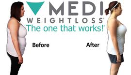 Paige, Actual Medi-Weightloss patient