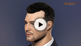 Watch NeoGraft Videos