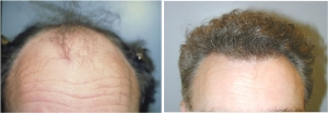 Neograft, Before and After Photo