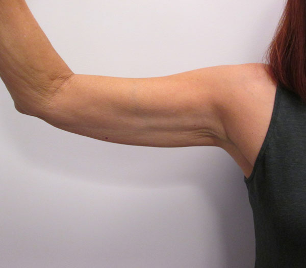 After-VelaShape III for Arms