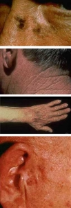 Actinic Keratosis Clinical Study at Contour Dermatology