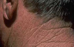 Actinic Keratosis Treatment at Contour Dermatology
