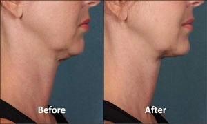 Kybella, Before and After, Actual Patient, Side View