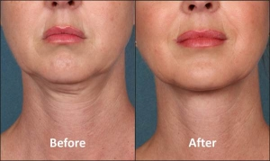 Kybella, Before and After, Actual Patient
