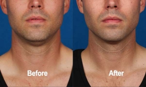 Kybella, Before and After, Actual Patient, Front View, Male