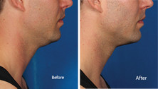 Kybella is for men too, before and after photo