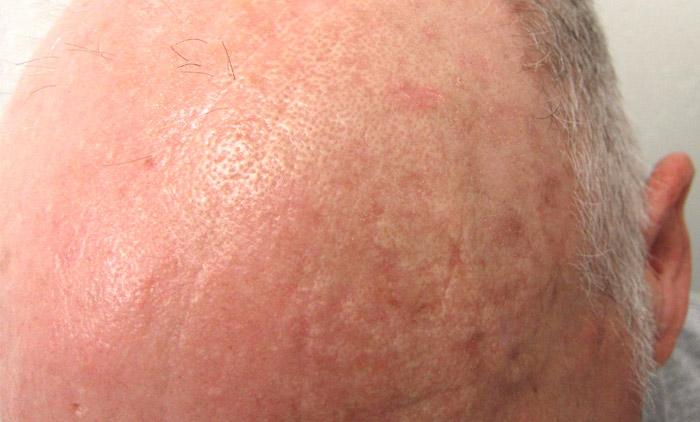 Estudio clínico en Queratosis Actínica (AK) | Dermatólogo Contour ...