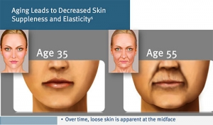 Aging leads to decreased skin suppleness and elasticity.