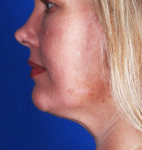CoolSculpting for the double chin, after photo