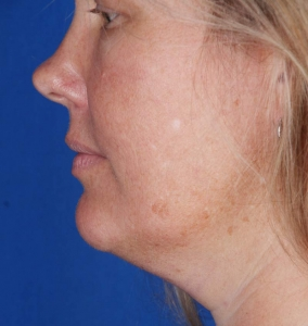 CoolSculpting for the double chin, before photo