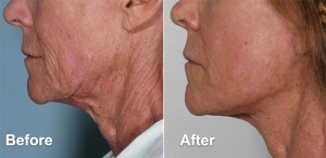 Mini Facelift Before and After Photo