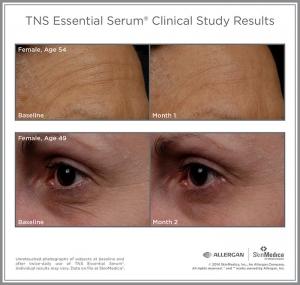 SkinMedica TNS Essential Serum Clinical-Results
