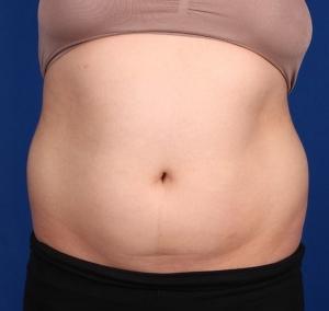 Actual Patient Liposuction Before