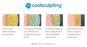 How CoolSculpting works, step by step.