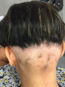 Ophiasis pattern of halo hairloss