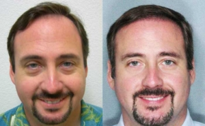 Before and After FUT Hair Transplant