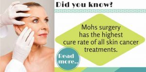 Mohs surgery has the highest cure rate of all skin cancer treatments.