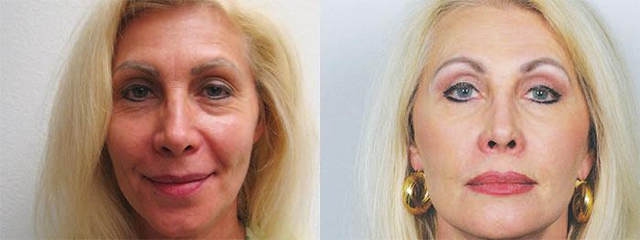 Princesa Karen Cantrell, cirugía de párpados antes y después