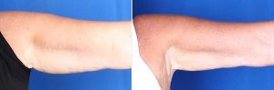 Foto de CoolSculpting para los brazos antes y después