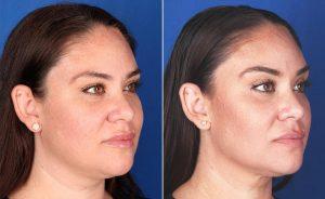 Resultados Profound antes y después para la cara y el cuello