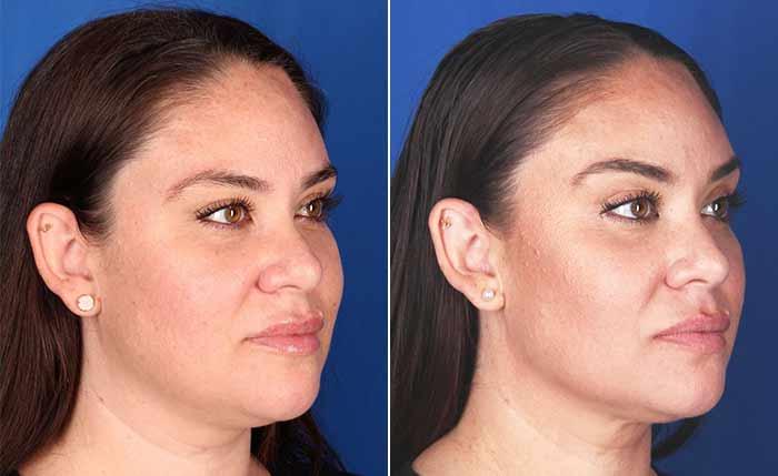 Resultados Profound antes y después para la cara y el cuello.